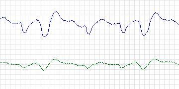 Beecardia - Physiobank - MIT-BIH Malignant Ventricular