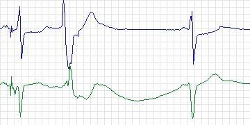 Beecardia - Physiobank - MIT-BIH Long Term
