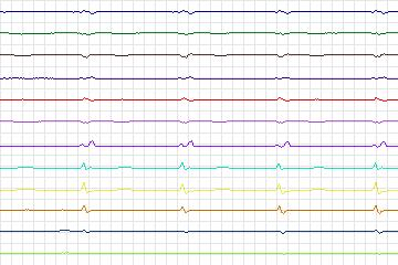 Beecardia - Physiobank - PTB Diagnostic ECG