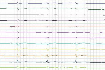 Beecardia - Physiobank - PTB Diagnostic ECG